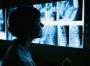Пленка медицинская рентгеновская