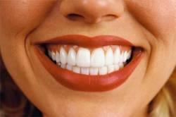 Как сделать белоснежную улыбку