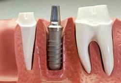 Понятие и особенности дентальной имплантации