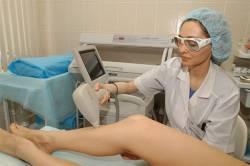 Как правильно сделать лазерную эпиляцию — подводные камни процедуры